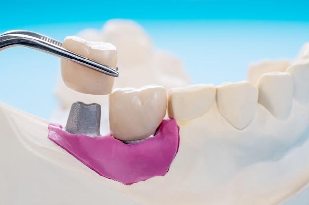 Implanty Korony Zęba I Mostu Oraz Ekspresowa Odbudowa Modelu. Premium Zdjęcia