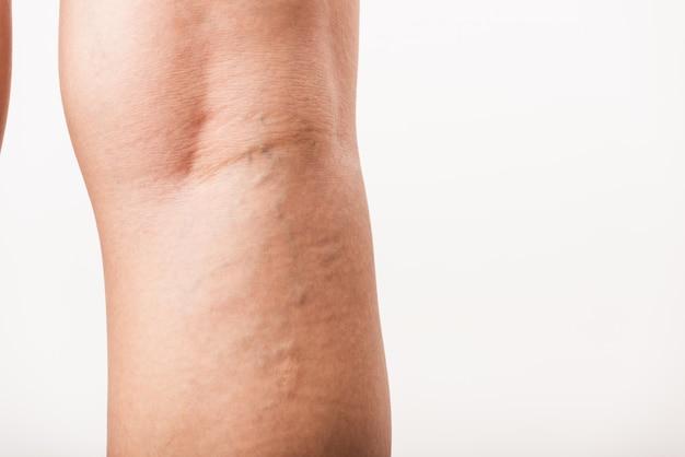 Kobieta Bolesne żylaki I Pajączki Na Nodze Premium Zdjęcia