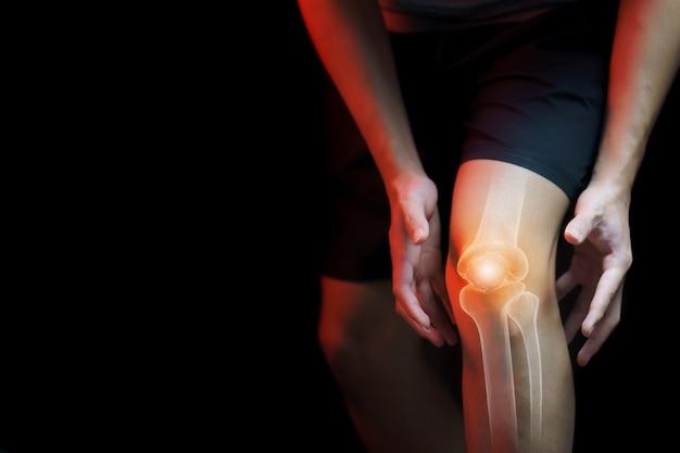 Koncepcja Medyczna, Mężczyzna Cierpiący Na Ból Kolana - Prześwietlenie Szkieletu, Premium Zdjęcia