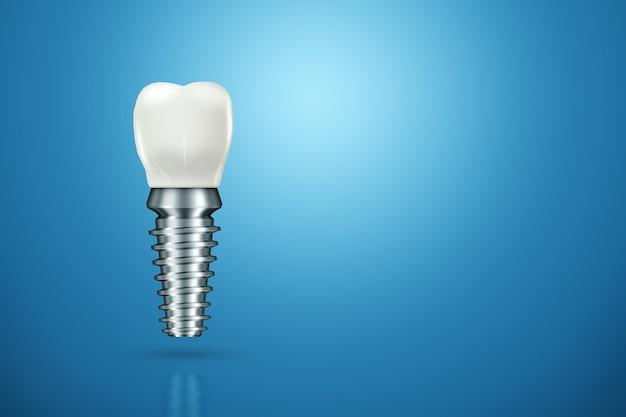 Koncepcja Wymiany Zębów Premium Zdjęcia