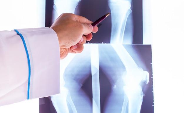 Lekarz Studiuje Prześwietlenie Dłoni Premium Zdjęcia