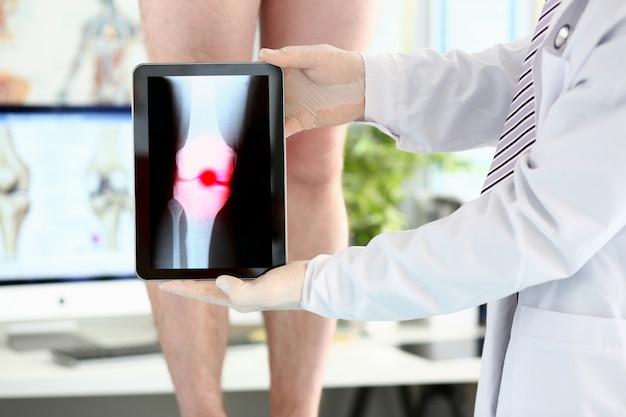 Męski lekarz wręcza mienie pastylki komputer pokazuje xray strzał z paintful terenem Premium Zdjęcia