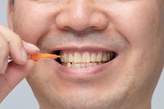 Mężczyzna Czyści Zęby Szczoteczką Międzyzębową. Premium Zdjęcia