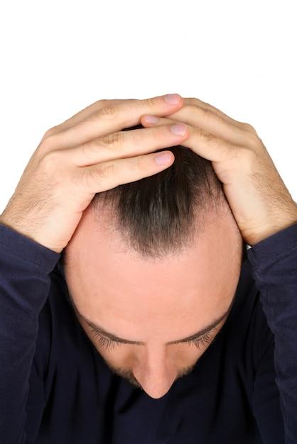 Mężczyzna Kontroluje Wypadanie Włosów Premium Zdjęcia