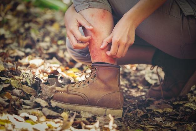 Mężczyzna ma bóle nóg po ukąszeniach owadów, mściciele lasów Premium Zdjęcia