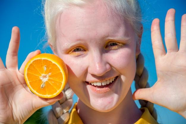 Młoda Kobieta Albinos W żółtej Bluzce Na Tle Błękitnego Nieba. Premium Zdjęcia