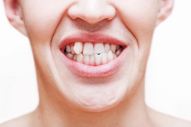 Młody Człowiek Pokazując Krzywe Rosnące Zęby. Mężczyzna Musi Udać Się Do Dentysty, Aby Zainstalować Szelki. Premium Zdjęcia