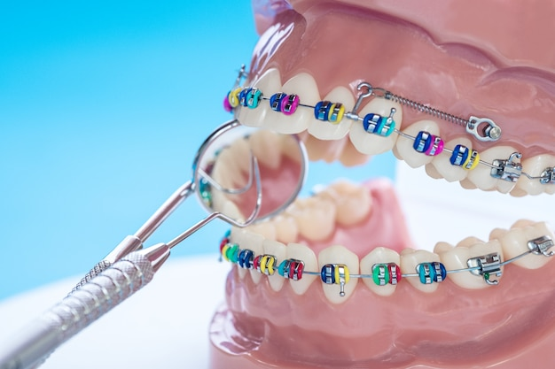Model demonstracyjny zębów odmian zamka ortodontycznego lub klamry Premium Zdjęcia