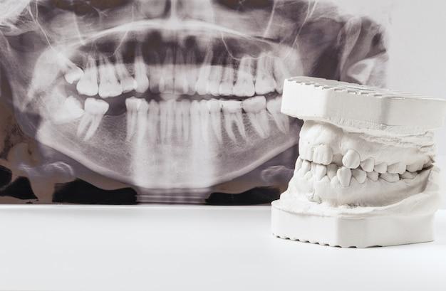 Model gipsowy dentystycznego szczęk ludzkich z panoramicznym zdjęciem rentgenowskim Premium Zdjęcia