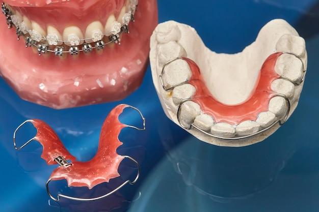 Model Ludzkiej Szczęki Lub Zębów Z Metalowym Aparatem Ortodontycznym, Narzędzie Do Prezentacji Ortodontycznej Premium Zdjęcia