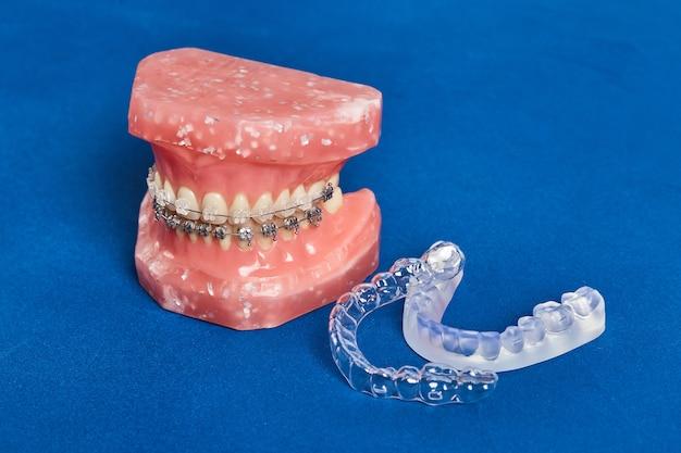 Model Ludzkiej Szczęki Lub Zębów Z Metalowymi Opaskami Na Zęby Premium Zdjęcia