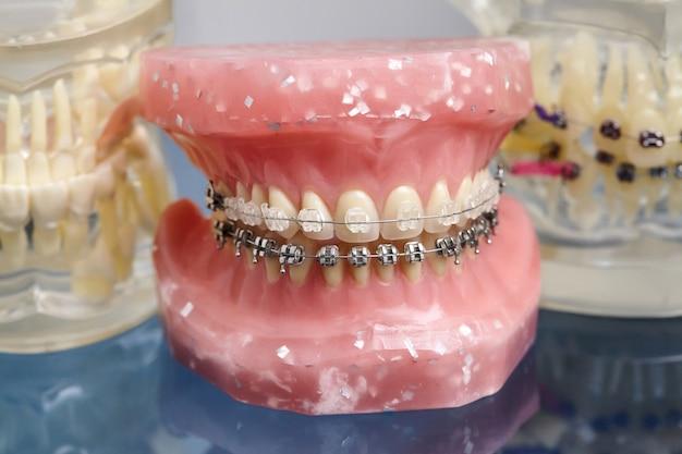 Model Ludzkiej Szczęki Lub Zębów Z Metalowymi Ortopedycznymi Aparatami Ortodontycznymi Premium Zdjęcia