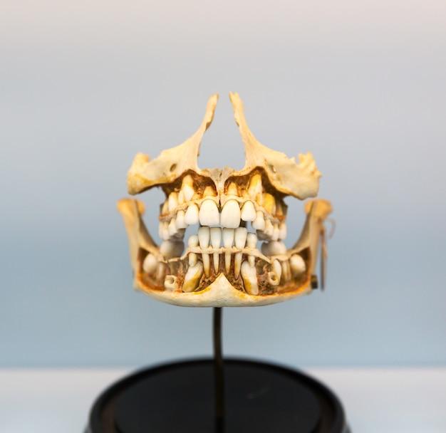 Model Medyczny Ludzkiej Szczęki Na Statywie. Poznanie Budowy Ust. Premium Zdjęcia