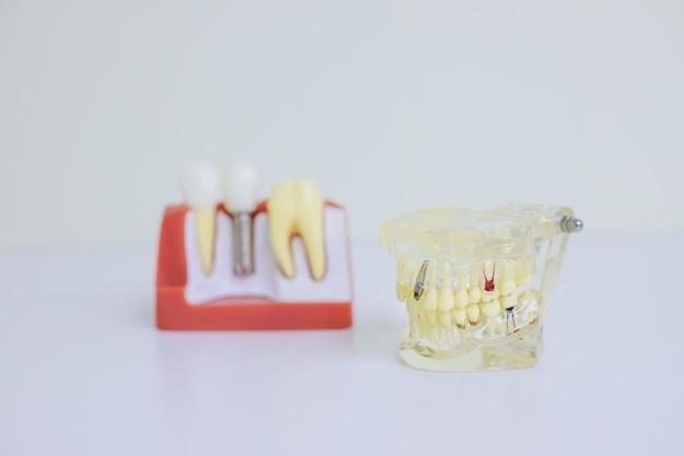 Model Ortodontyczny I Narzędzie Dentystyczne - Model Demonstracyjny Zębów Odmian Ortezy Lub Aparatu Ortodontycznego. Premium Zdjęcia