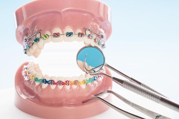 Model ortodontyczny i narzędzie dentystyczne - model zębów demonstracyjnych o zróżnicowanych kształtach ortodontycznych Premium Zdjęcia