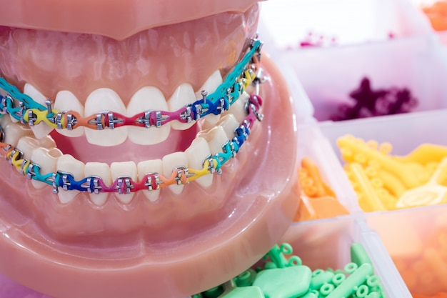 Model ortodontyczny z bliska - model demonstracyjny zębów różnych odmian zamka ortodontycznego lub aparatu ortodontycznego Premium Zdjęcia
