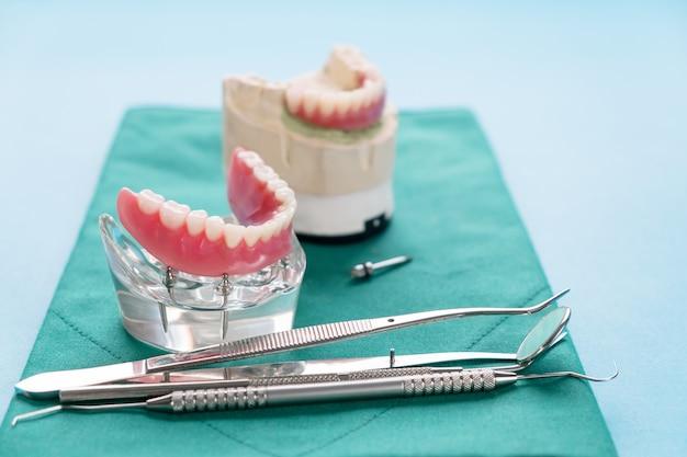 Model Zębów Przedstawiający Model Mostu Korony Implantu / Demonstracja Dentystyczna Badanie Zębów Uczy Modelu. Premium Zdjęcia