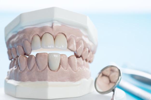 Narzędzie porsthodontic and dentist - model zębów demonstracyjnych o zróżnicowanych wymiarach porsthodontic b Premium Zdjęcia