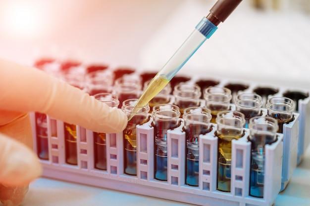 Naukowiec pracuje z próbką krwi w laboratorium Premium Zdjęcia