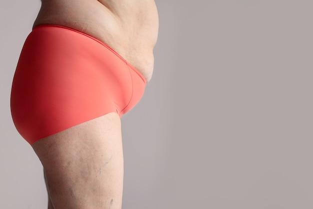 Otyła Kobieta Z Grubymi Pośladkami, Otyłe Kobiece Ciało Premium Zdjęcia