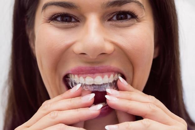 Pacjentka Noszenia Aparatu Ortodontycznego Darmowe Zdjęcia