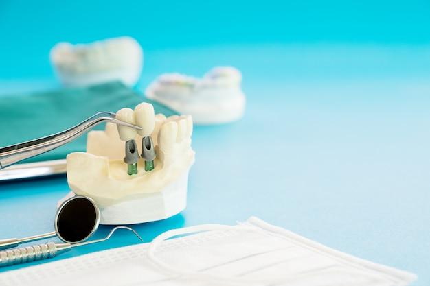 Podparcie zęba modelu implantu naprawia implant i koronę mostu. Premium Zdjęcia