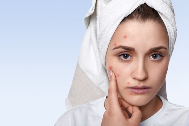 Portret Młoda Kobieta Ma Problemową Skórę I Krostę Na Jej Policzku, Będący Ubranym Ręcznika Na Głowie Ma Smutnego Wyrażeniowego Wskazywać Darmowe Zdjęcia