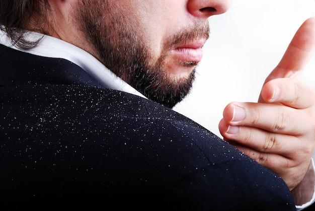 Problem łupieżu na sholderze mężczyzny Premium Zdjęcia