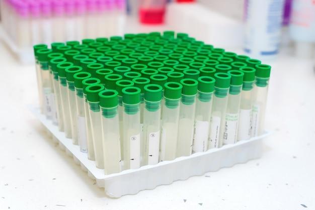 Pusta Próbna Krwi Tubka W Laboratorium Premium Zdjęcia