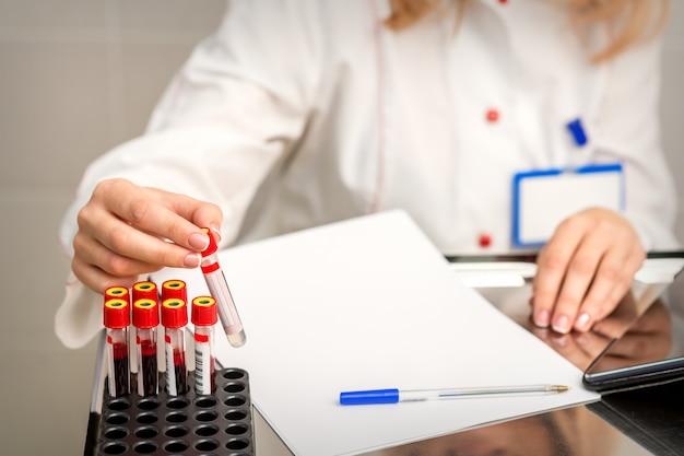 Ręka Technika Laboratoryjnego Lub Pielęgniarki Wyjmuje Pustą Probówkę Krwi Ze Stojaka W Laboratorium Badawczym Premium Zdjęcia