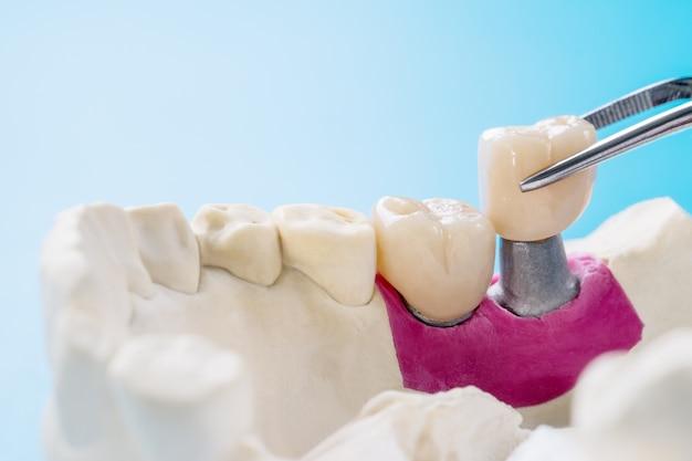 Sprzęt Do Implantacji Koron I Mostów Zęba Oraz Modelowa Odbudowa Ekspresowa. Premium Zdjęcia