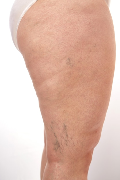 Starsza Kobieta Z Cellulitem I Rozstępami Premium Zdjęcia