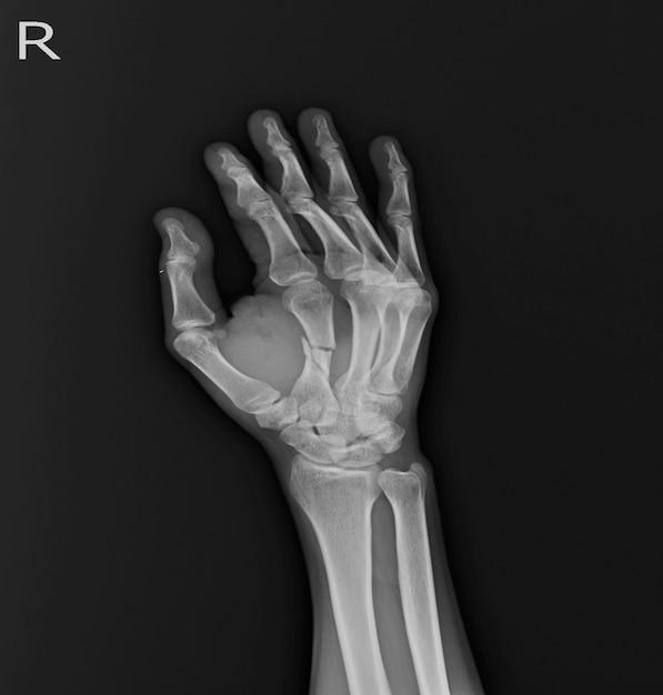 X-ray hand ap, oblique: złamanie środkowego wału rt.2nd. pękanie tkanki miękkiej w kościach metakapalnych. Premium Zdjęcia