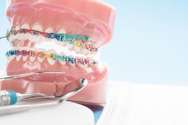 Zamknij model ortodontyczny Premium Zdjęcia