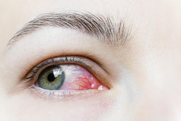 Zamknij Się Z Ciężkim Przekrwione Czerwone Oko. Wirusowe Zapalenie Powiek, Zapalenie Spojówek, Adenowirusy. Podrażnione Lub Zainfekowane Oko. Premium Zdjęcia
