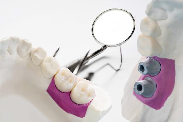 Zbliżenia / Implant Protetyka Lub Protetyka / Sprzęt Do Implantacji Koron I Mostów Oraz Modelowa Odbudowa Ekspresowa. Premium Zdjęcia