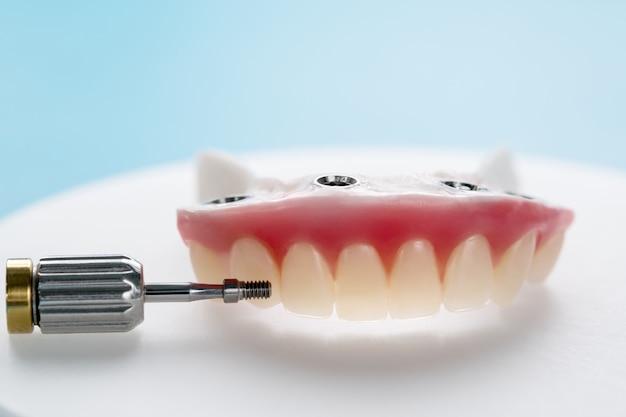 Zbliżenie / Implanty Dentystyczne Wspierały Nadciśnienie Na Niebieskim Tle / Przykręcono śrubą / Uzupełnienia Implantu. Premium Zdjęcia