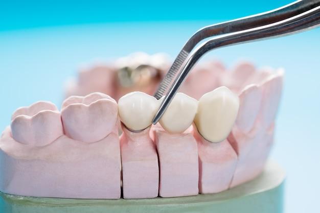 Zbliżenie / Protetyka Lub Protetyka / Korona I Most Implant Dentystyczny Sprzęt I Model Ekspresowej Naprawy Fix. Premium Zdjęcia