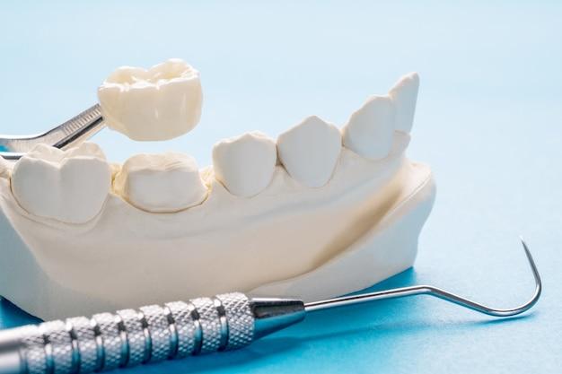 Zbliżenie / Protetyka Lub Protetyka / Pojedyncze Zęby Korony I Mosty Model Ekspresowej Odbudowy. Premium Zdjęcia