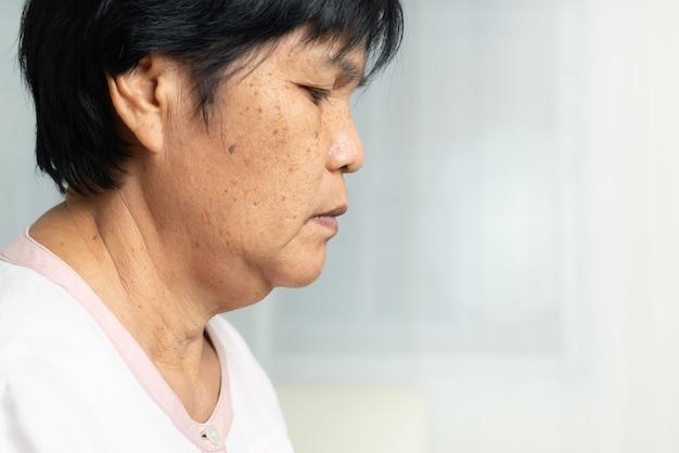 Zbliżenie Twarzy Azjatyckiej Starszej Kobiety Ze Stanem Pomarszczonej Skóry. Widok Z Boku Premium Zdjęcia