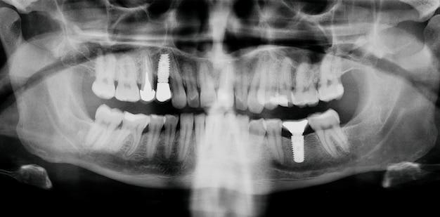 Zęby Dentystyczne Rtg Z Implantami. Premium Zdjęcia
