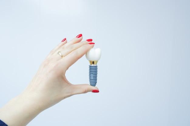 Żeńska ręka trzyma ząb implant fałszywy ząb. ludzki implant zęba. koncepcja stomatologiczna. ludzkie zęby lub protezy Premium Zdjęcia