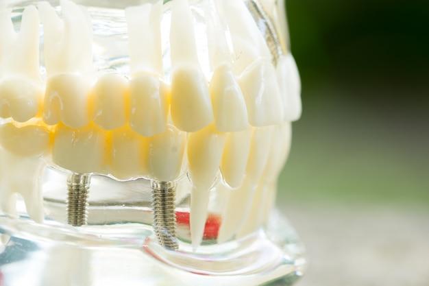 Zestaw narzędzi sprzęt dentystów, protezy pokazujące implant Premium Zdjęcia