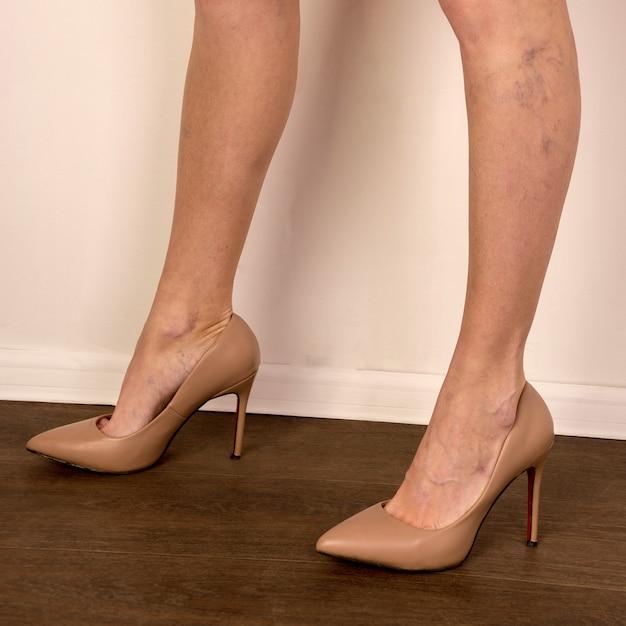 Żylaki Na Szczupłych Kobiecych Nogach. Flebologia - Obraz Premium Zdjęcia