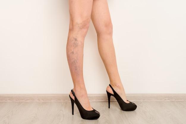 Żylaki Na Szczupłych Kobiecych Nogach. Flebologia Premium Zdjęcia