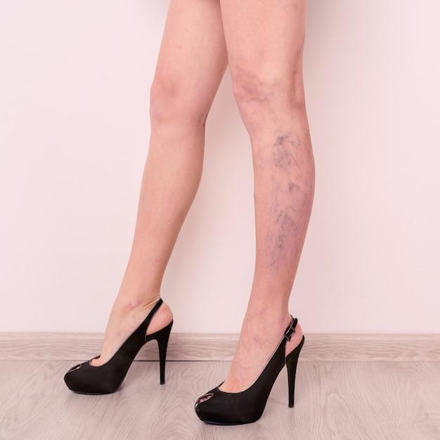 Żylaki Na Szczupłych Kobiecych Nogach Premium Zdjęcia