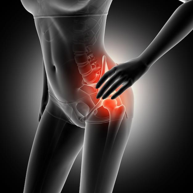 3d render de una figura femenina cogiendo la cadera en dolor con el ...