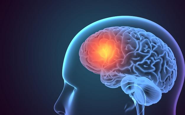 Cabeza de rayos x con resalte en el cerebro Foto Premium