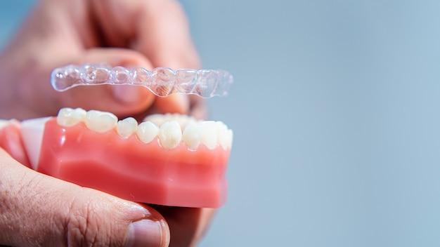 De cerca. el médico coloca alineadores transparentes en los dientes de la mandíbula artificial. Foto Premium