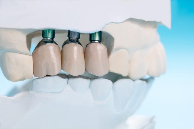 Close up implan modelo soporte dental fijación puente implante y corona. Foto Premium